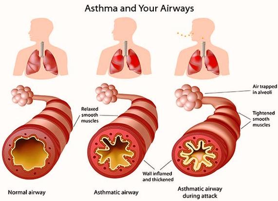 asthma symptoms | anatomy system - human body anatomy ... diagram of ashtma