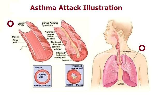 asthma attack illustration   Anatomy System - Human Body Anatomy diagram  and chart imagesHuman Body Anatomy Diagrams