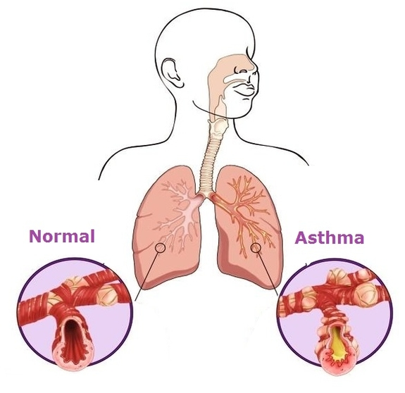 Body Diagram Of Asthma - Trusted Wiring Diagram •