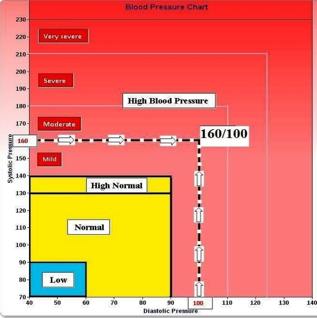 Blood Pressure Chart Example  Anatomy System  Human Body Anatomy
