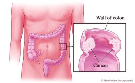 colorectal cancer diagram