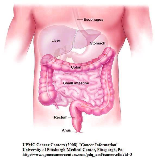 Diagram Of Cystic Fibrosis Patients Need Early Colon Cancer