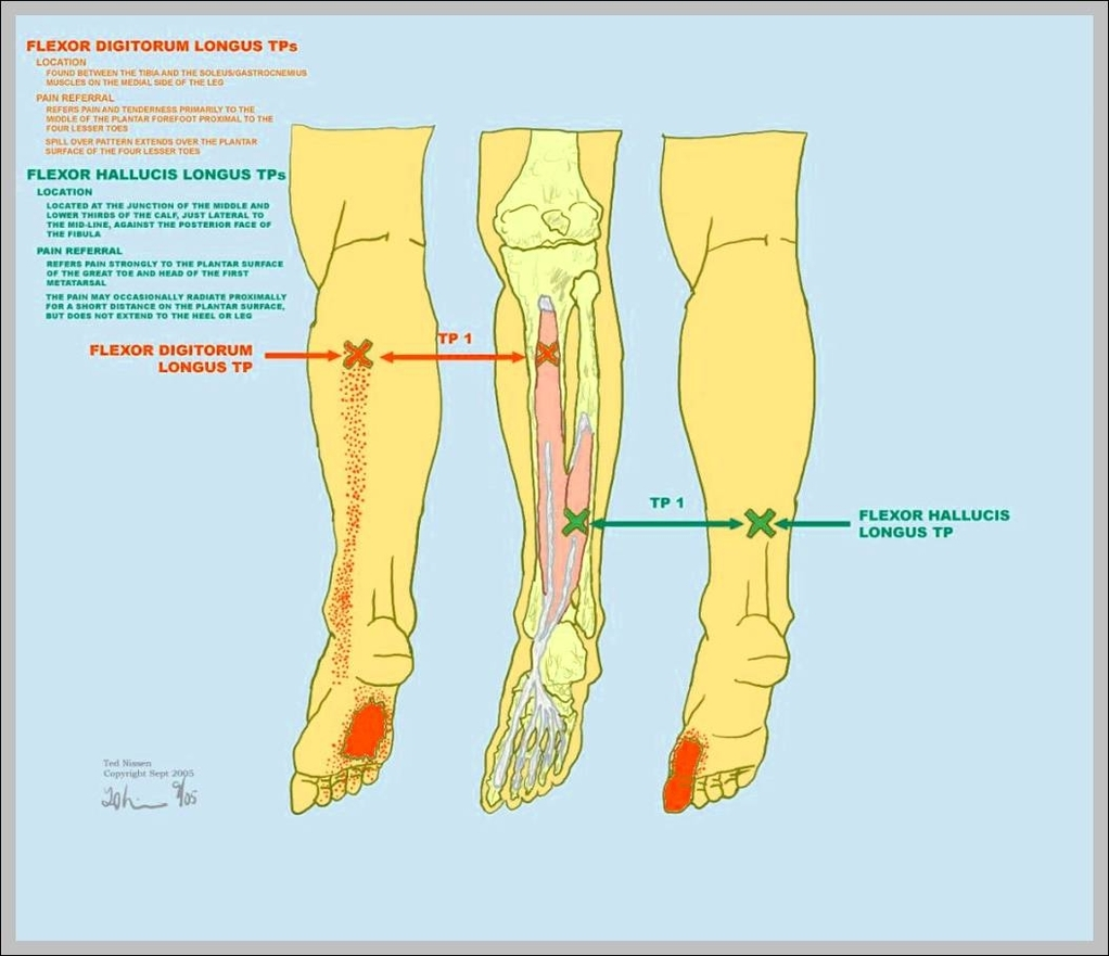 flexor digitorum longus 1024×907 | Anatomy System - Human Body ...