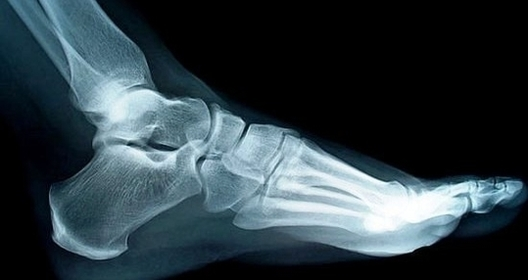 human foot | Anatomy S...