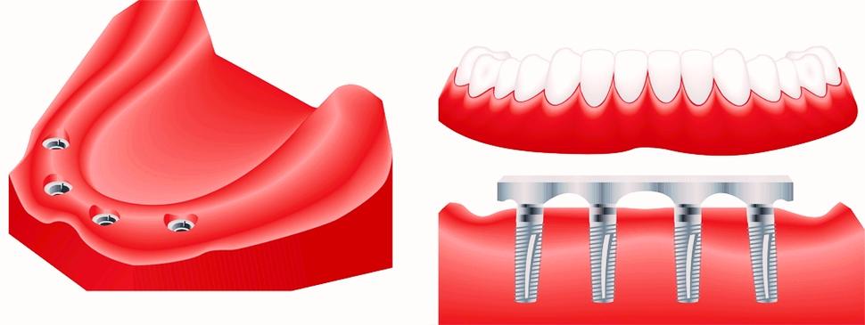full mouth dental restoration photo anatomy system. Black Bedroom Furniture Sets. Home Design Ideas