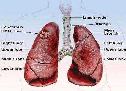 lung cancer new diagram | Anatomy System - Human Body Anatomy ...