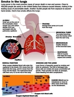 Cancer symptoms anatomy system human body anatomy diagram and lung cancer smoking diagram lung cancer smoking chart human anatomy diagrams and charts explained this diagram depicts lung cancer smoking with parts ccuart Images
