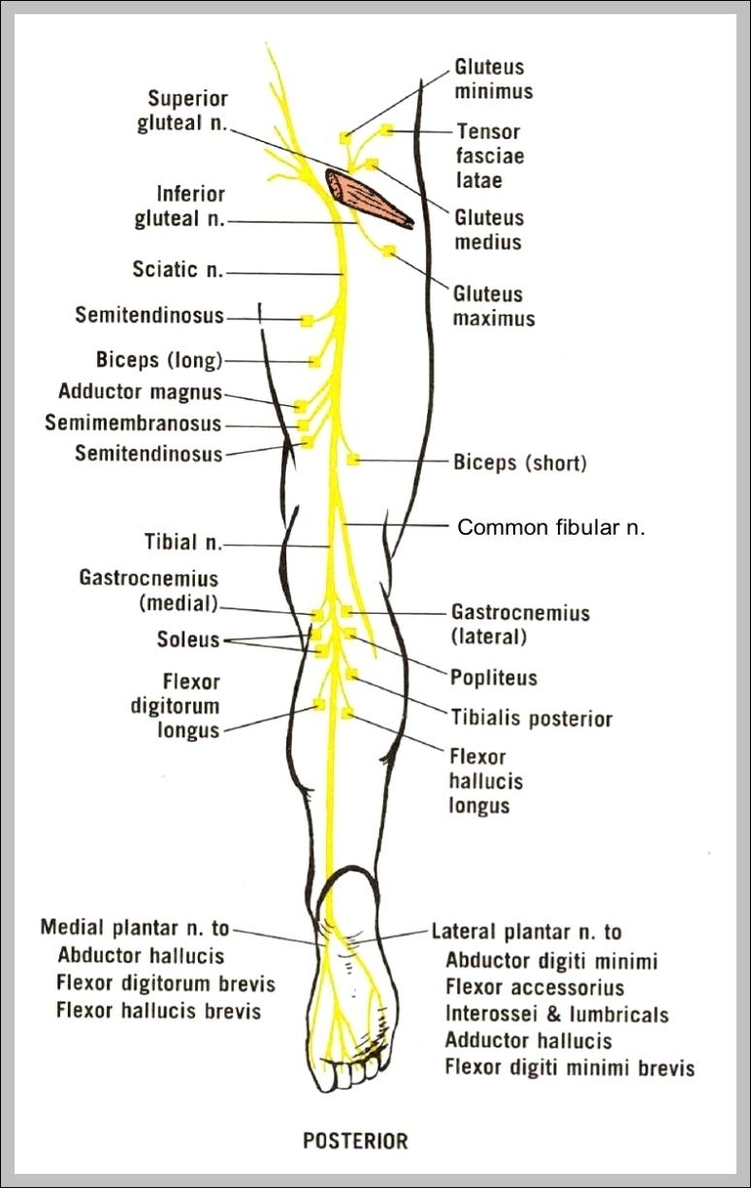 Sciatica Leg Diagram Residential Electrical Symbols